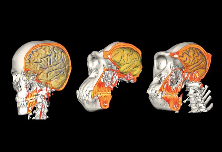 Найден молекулярный переключатель, регулирующий рост мозга