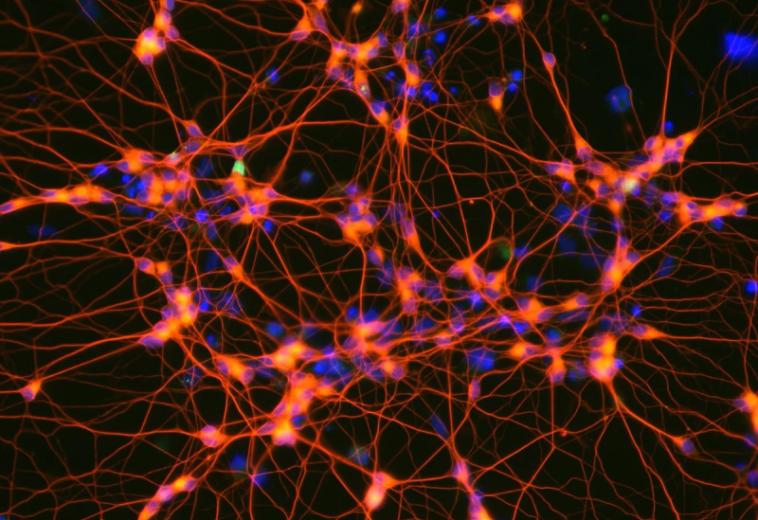 Платформа машинного обучения визуализирует активные нейроны в режиме реального времени