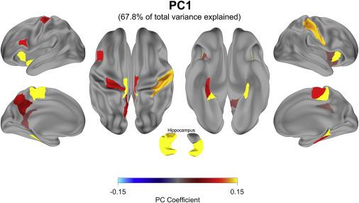 Бодрствующий мозг учится в четыре раза быстрее, чем спящий